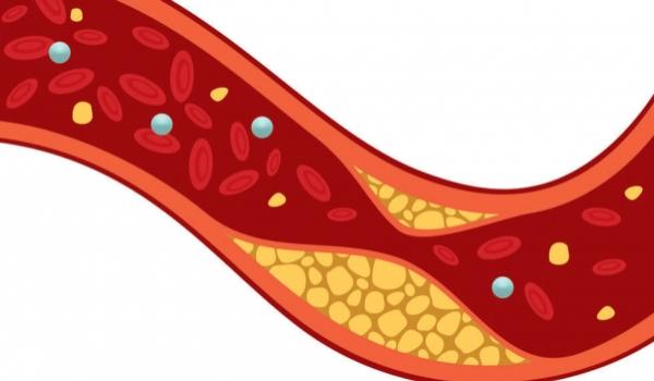 Infosessie Cholesterol